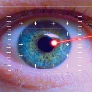 criocirugia laser con argon
